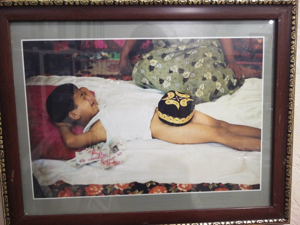 circumcision uzbekistan
